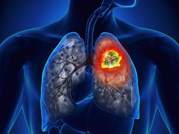 Nguyên nhân và dấu hiệu nhận biết của ung thư phổi
