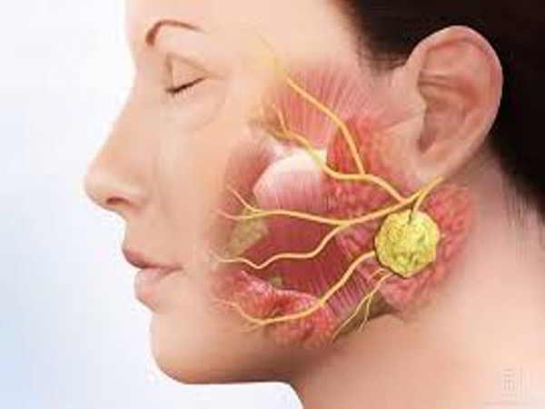 Tìm hiểu về bệnh viêm tuyến nước bọt và cách điều trị