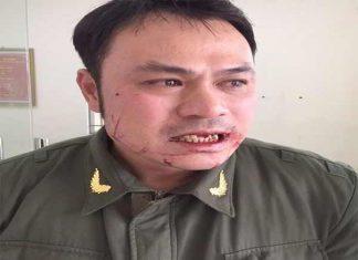Bắt được cò taxi đánh gãy 4 răng của nhân viên an ninh sân bay