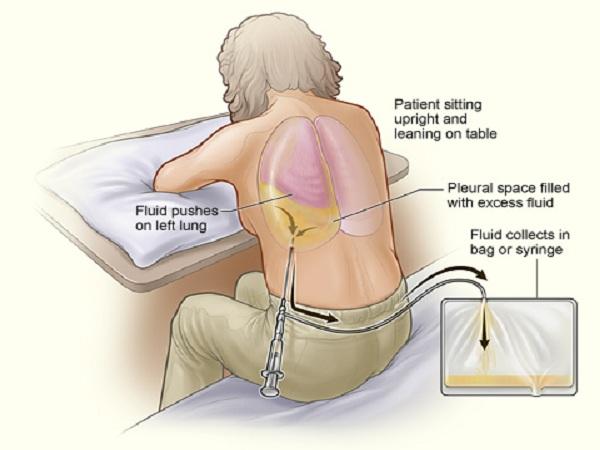 Tìm hiểu nguyên nhân, triệu chứng và cách điều trị tràn dịch màng phổi