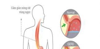 Nguyên nhân, dấu hiệu và cách phòng tránh trào ngược dạ dày thực quản