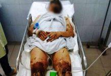 Anh trai nam Việt Kiều bị tạt axit cắt gân chân đã khóa số điện thoại sau khi về Canada