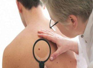 Ung thư da - Nguyên nhân, dấu hiệu và cách điều trị