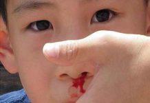 Nguyên nhân, cách xử lý và chế độ dinh dưỡng khi bị chảy máu cam