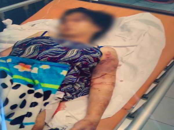 Cô gái mang thai 6 tháng bị bắt cóc tra tấn khiến thai nhi tử vong