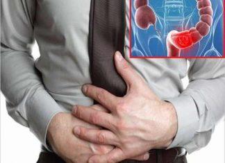 Những thông tin cần biết về bệnh viêm đại tràng