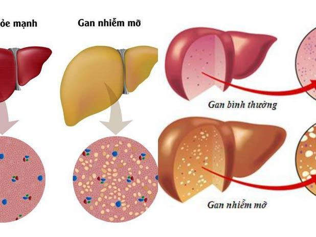 Bệnh gan nhiễm mỡ khiến cho chức năng gan bị suy giảm